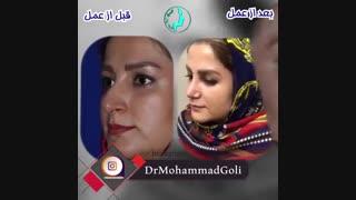 عمل زیبایی بینی | دکتر گلی بهترین جراح بینی تهران