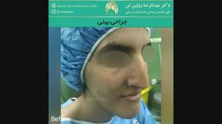 جراحی بینی | فوق تخصص جراحی پلاستیک | دکتر عبدالرضا روئین تن