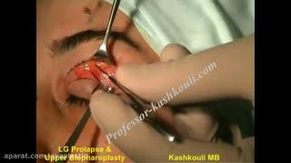 ویدئوی  بلفاروپلاستی پف پلک بالا | پروفسور کشکولی فوق تخصص جراحی پلاستیک چشم