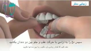 روش استفاده از نخ دندان برای سلامت دندان - زیبایی سنتر