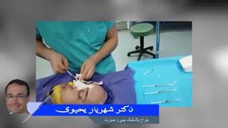 جراحی بینی و پی آر پی