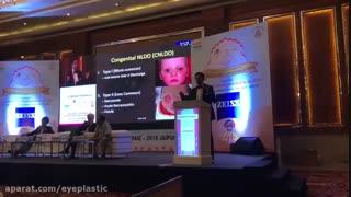 روش جدید برخورد با انسداد مجرای اشکی کودکان در هند | پروفسور کشکولی فوق تخصص جراحی پلاستیک چشم