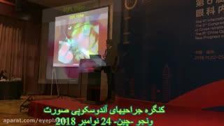 آموزش جراحی آندوسکوپی لیفت ابرو و پیشانی توسط پروفسور کشکولی در چین