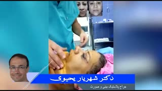عمل جراحی زیبایی پلک و بینی | دکتر شهریار یحیوی