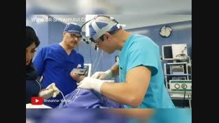 نتیجه جراحی بینی | بهترین جراح بینی تهران