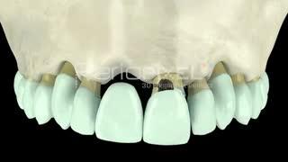 بریج دندان یا ایمپلنت؟