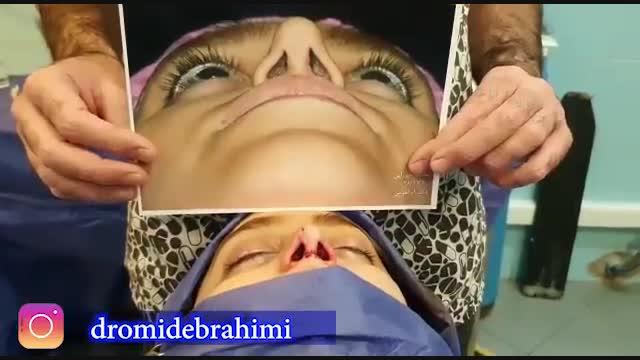 عمل ترمیم بینی با استفاده از غضروف لاله گوش توسط دکتر امید ابراهیمی بهترن جراح بینی
