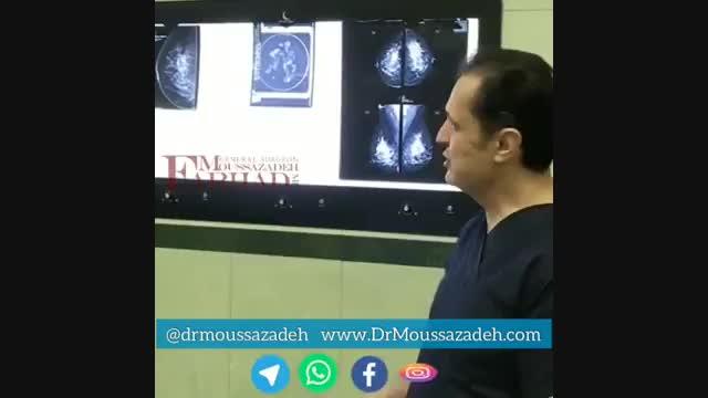 تشخیص سرطان پستان و درمان کامل سرطان پستان